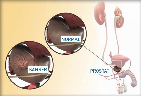 prostat kanserinin belirtisi nedir