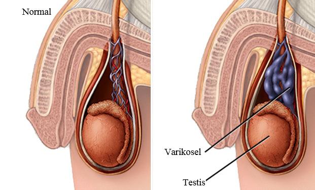 ereksiyonu ilaclari